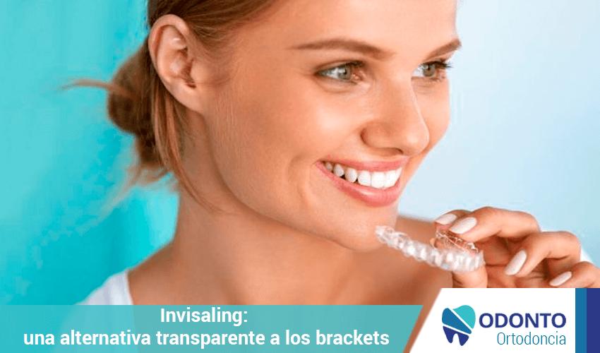 Invisaling una alternativa transparente a los brackets ortodoncia odonto argentina - Como alinear los dientes en casa sin brackets ...